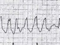 Reto Veterinario: ECG en el quirófano