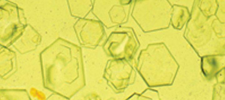 Cristales de oxalato