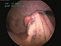 Ovariectomía laparoscópica: una alternativa mínimamente invasiva para la esterilización