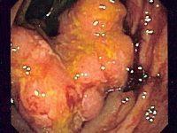 Investigadores veterinarios identifican biomarcadores del cáncer de colon