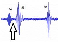 [Artículo] Flujo sanguíneo en los vasos y cámaras cardíacas: soplos cardíacos