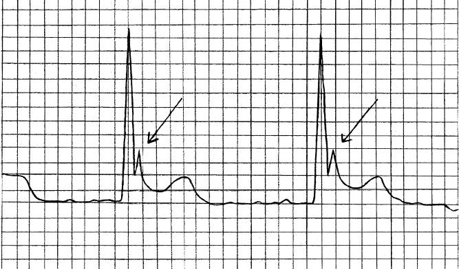 La onda J o de Osborne es una pequeña onda que sigue al complejo QRS, a menudo difícil de detectar en las derivaciones habituales (I, II y III) y principalmente visible en las derivaciones precordiales, y se ve exclusivamente en hipotermia.