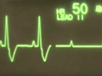 Reto Veterinario: Electrocardiografía